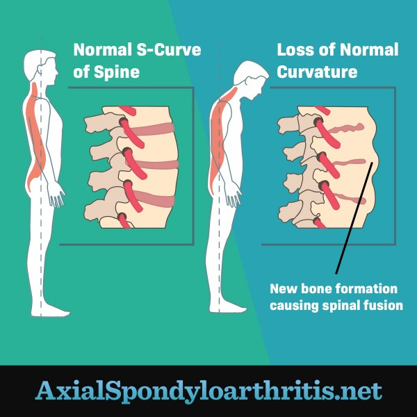 A normal spine next to a spine that has lost normal curvature due to bone formation between the vertebrae, showing progression of axial spondyloarthritis.